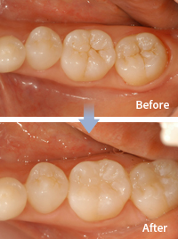 mplant_dental_img_04_01