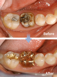 mplant_dental_img_04_03